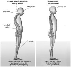 Proper Posture